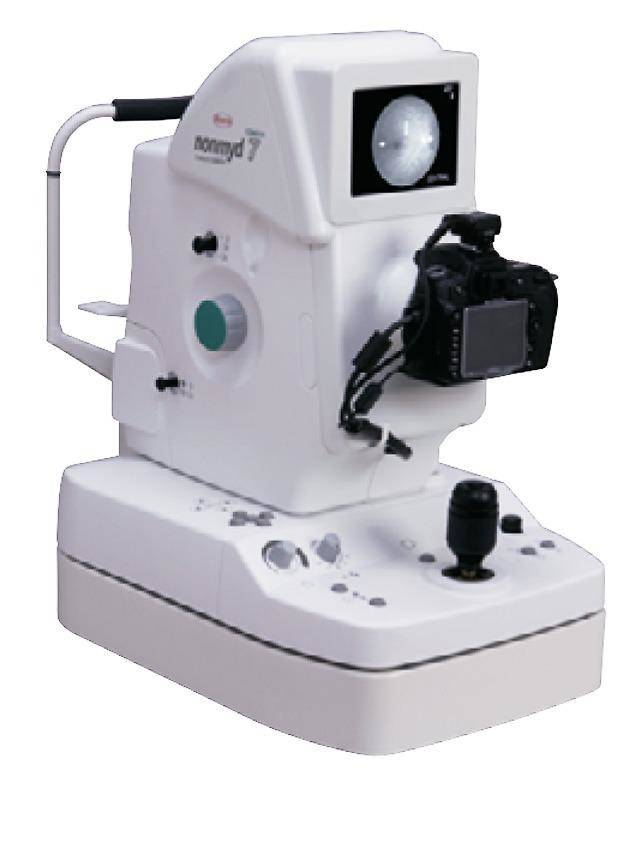 Kowa Alpha 7 Nonmyd Fundus Camera